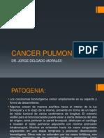 Cancer Pulmon