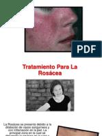 Tratamiento Rosacea - Laser Rosacea, Rosacea Causas, Rosacea Cura