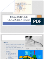 Fractura de clavícula (S42