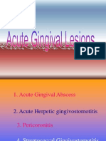 Acute Gingival Lesions