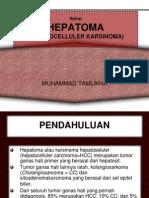 Refrat Hepatoma ppt