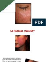 Que Es Rosacea - Rosacea Imagenes, Rosacea Tiene Cura, Como Eliminar La Rosacea