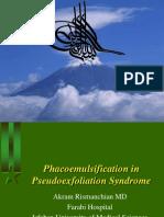 Phaco Emulsification in Pseudoe Xfoliation Syndrome 1387 2008