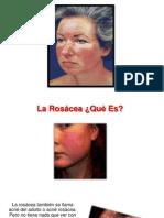 Tratamientos Para La Rosacea - Tratamiento Para Rosacea, Piel Con Rosacea