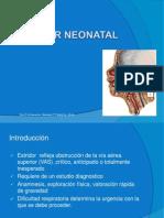Estridor Neonatal