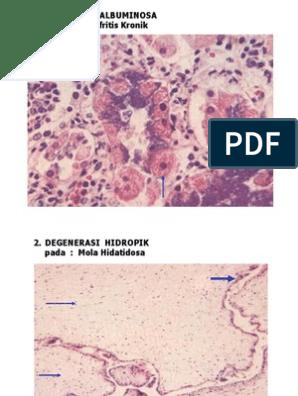 a látás példáinak patológiája
