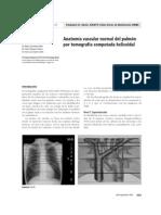 Anatomia Vascular Pilmonar