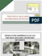 Terceros molares superiores