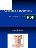 8 adenomaparatiroideo