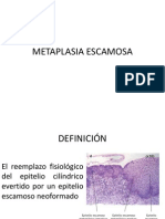 METAPLASIA ESCAMOSA