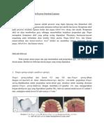 Beberapa Desain Kawat Pada Pesawat Ortodonti Lepasan