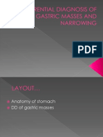 Diffrential Diagnosis of Gastric Masses and Narrowing