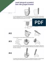 Tehnici de Frezare Pentru Restaurari Integral Ceramice