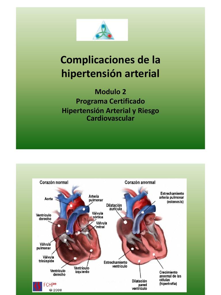 Complicaciones de la hipertensión arterial - Hipertensión..