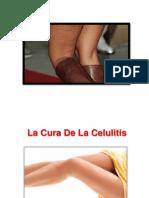 Quitar Celulitis, Como Se Quita La Celulitis, Piernas Con Celulitis, Acabar Con La Celulitis