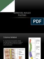 Hernia Del Nucleo Pulposo