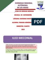 Ileo Meconial