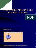 02 - Cancer Tiroida