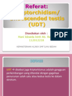 UDT Cryptorchidism