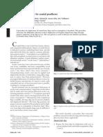 cranial prosthesis