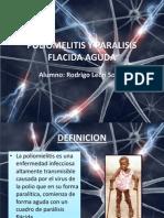 Poliomelitis y Paralisis Flacida Aguda