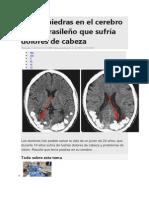 Hallan piedras en el cerebro de un brasileño que sufría dolores de cabeza