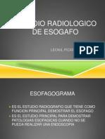 Estudio Radiologico de Esogafo