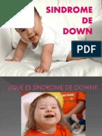 Presentacion Sindrome de Down