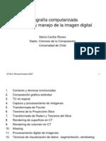 Tomografia_computarizada_(1)