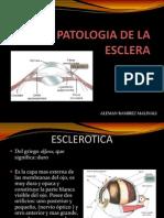 Patologia de La Esclera