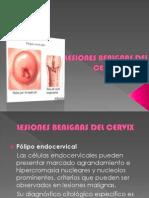 Lesiones Benignas Del Cervix