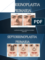 septorrinoplastia