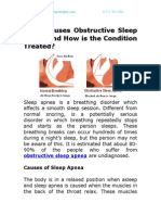 What Causes Obstructive Sleep Apnea and How is the Condition Treated