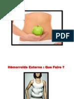 Hemoroide Interne, Symptome Hemoroide, Remede Contre Les Hemorroides, Les Hemoroide
