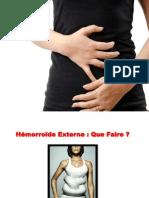 Traitement Hemoroide, Traitement Hemorroide, Soigner Hemorroides Externes, Soigner Hémorroïdes
