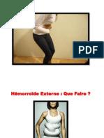 Comment Soigner Les Hemorroides, Hémorroïdes Traitement, Suppositoire Hemorroides, Emoroid