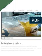 Radiología de La Cadera