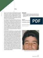 Dialnet-SindromeDeParryRomberg-4110938
