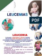 exposicion leucemia.