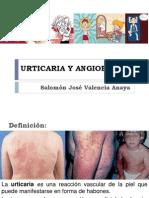 urticariaangioedemasalomn-131026212929-phpapp02