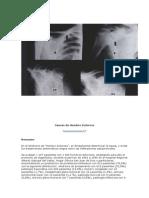 luxación acromioclavicular2