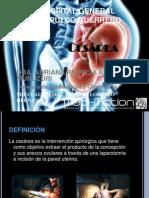 cesaraytiposdecesareasindicacionesycontraindicaciones-101211112946-phpapp01
