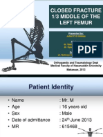 Case Report - Juliet - Closed Fracture Middle of the Left Femur