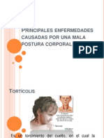 principalesenfermedadescausadasporunamalaposturacorporal-110105234203-phpapp01