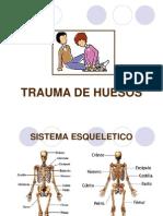 Trauma de Huesos