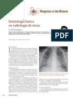 Rx Torax Pediatria