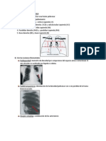 Clase 8 - Patrón Alveolar