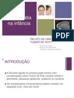 Sinusopatia_complic.ppt