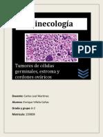 Tumores de Celulas Germinales, Estromales y de Cordon Ovarico.