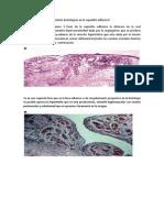 14.La Capsulitis Adhesiva